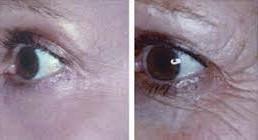 zmarszczki oko